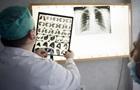 ВООЗ назвала туберкульоз найбільш смертоносною хворобою в світі