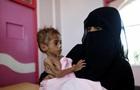 UNICEF: 400 тисяч дітей у Ємені можуть будь-якої хвилини померти