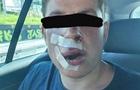 В Польше жестоко избили студента из Украины