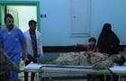 Число жертв ракетного обстрела в Йемене превысило 100 человек