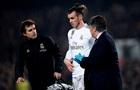 Бейл отримав травму в матчі Кубка Іспанії