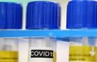 У Дніпропетровській області виявили спалах коронавірусу