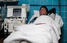 У США коронавірус запропонували лікувати радіацією