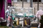 Українські медики показали фото уражених коронавірусом легень