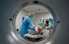 Вчені вважають, що SARS-CoV-2 може викликати аутоімунні захворювання
