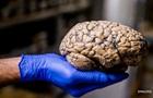 Напрямик в мозг. Как коронавирус поражает нейроны