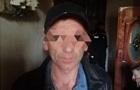 В Одессе и под Киевом задержали подозреваемых в педофилии