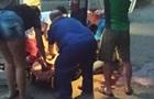 У Запоріжжі жінка померла після нападу собаки