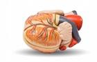 Серцеві хвороби. Інсульту часто передує миготлива аритмія
