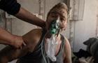 Пациентам со штаммом Дельта нужно в пять-шесть раз больше кислорода – МОЗ