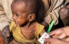 В ООН заявили про голод на Мадагаскарі