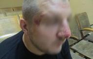 Українця побили під час в'їзду в Росію - Держприкордонслужба
