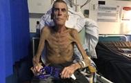 Соцслужбы признали работоспособным старика весом 38 кг