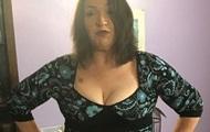 Женщина похудела на 108 кг после развода