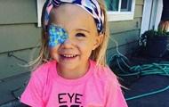 Вспышка камеры помогла найти в глазу ребенка рак
