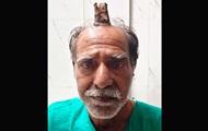 Индийцу удалили из головы 10-сантиметровый рог
