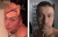 В полиции рассказали подробности задержания банды киллеров под Киевом