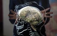 Открыта схема роста головного мозга