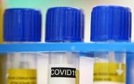 Названы самые частые причины смерти у пациентов с COVID-19