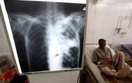 ВОЗ на фоне COVID-19 напомнила о туберкулезе