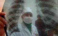 В Винницкой области на коронавирус проверят всех больных пневмонией