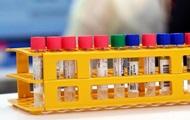 Ученые выяснили, что иммунитет к COVID-19 у переболевших снижается через три месяца