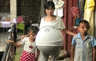 У китаянки неожиданно вырос 20-килограммовый живот