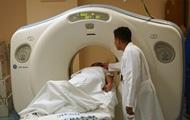 Експерти назвали п'ять несподіваних симптомів раку