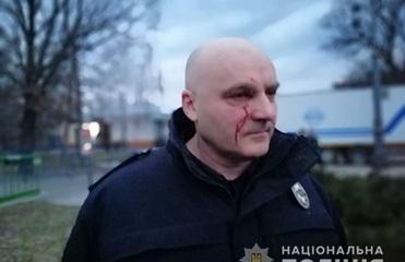 В МВД назвали количество пострадавших в Черкассах