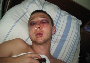 СМИ: В Николаеве милиционер зверски избил студента, который заступился за девушку