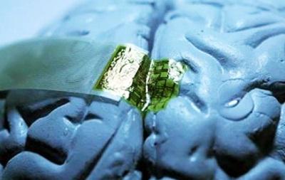 Пентагон разрабатывает мозговой имплантат для восстановления памяти после травм