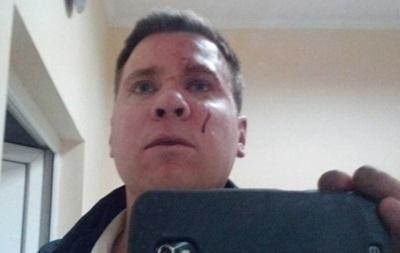 Крымская милиция прокомментировала избиение американского активиста Евромайдана