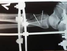 Женщина выпала из киевского троллейбуса и сломала ногу