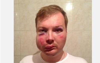 Журналист полтавской газеты заявил об избиении милиционерами