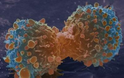 Ученые: большинство видов рака - дело случая