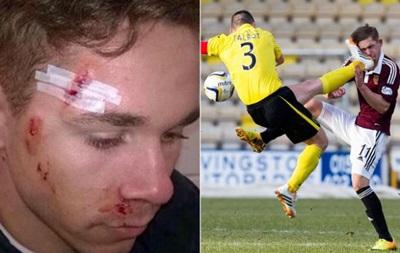 Брутальний футбол: жовта картка за удар суперника ногою в обличчя