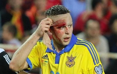 Кравцу наложили два шва, Зозуля возвращается в клуб с травмой колена