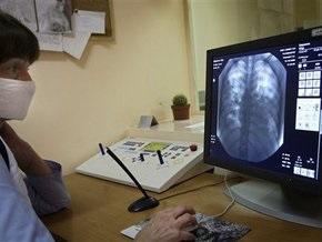 СЭС Киева рассказала, почему закрыли лабораторию по диагностике гриппа A/H1N1