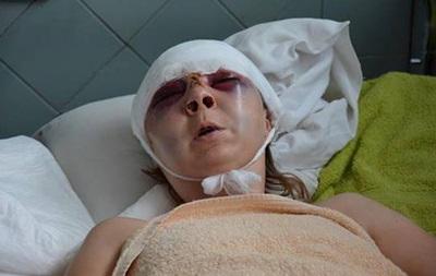 Киевсовет просит милицию расследовать избиение активистки