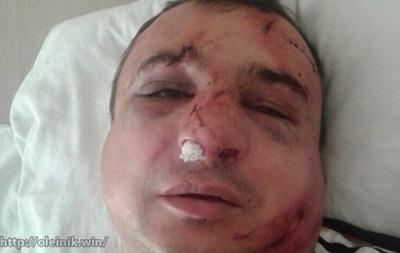 Луганского сепаратиста Клинчаева избили в Киеве