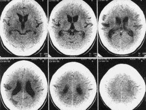 Британцы нашли эффективное средство против рассеянного склероза