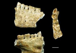 Ученые обнаружили древнейший запломбированный зуб