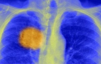 Учені знайшли  слабке місце  раку