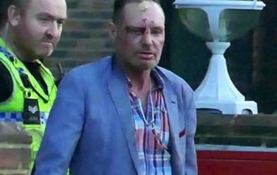 Экс-игрок сборной Англии напился и разбил себе голову