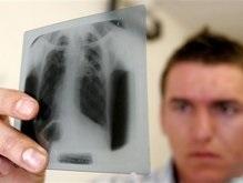 Больных туберкулезом украинцев будут лечить принудительно