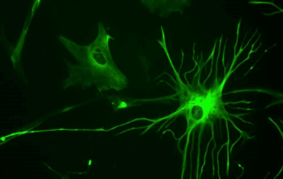 Ученые нашли лекарство от рассеянного склероза