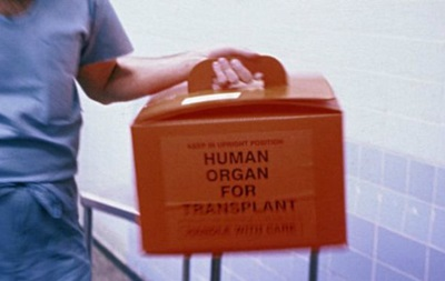 У Британії успішно пересадили ВІЛ-інфіковані органи