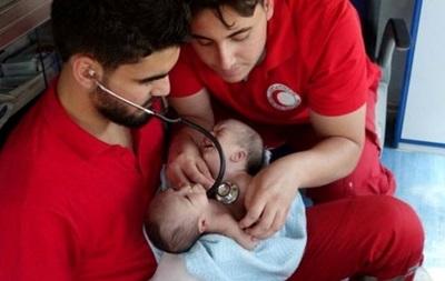 Сиамские близнецы в Сирии умерли в ожидании разрешения на операцию