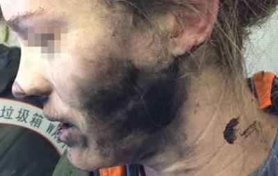 У жінки в літаку вибухнули навушники від мобільного