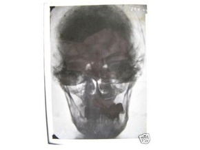 На eBay появились рентгеновские снимки головы Гитлера